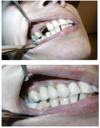 Implantes dentales - Casos reales - Unitarios