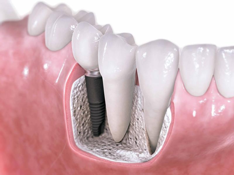 Implante dental - ¿Qué son?
