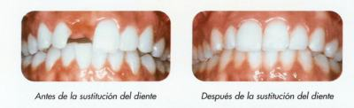 Implantes dentales - Diferencias entre un diente real y un implante