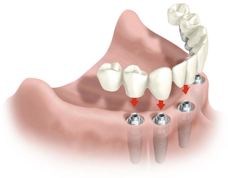 Implantes dentales - Periodo de cicatrización