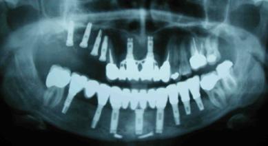 Implantes dentales - Hueso atrófico o escaso