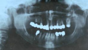 Implantes dentales - Implantología avanzada - Zona estética
