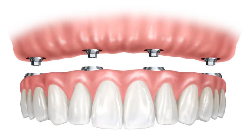 Implantes dentales - Cuando se han perdido todos los dientes.