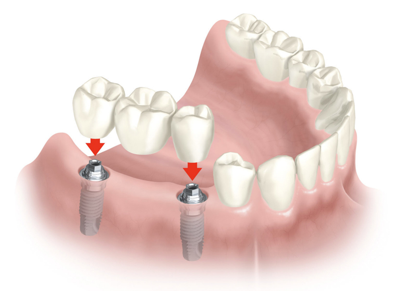 Implantes dentales - ¿Cuáles son las alternativas a los implantes dentales?